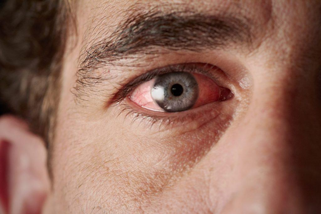 Artigo 304 – Cegueira de conflito de valores